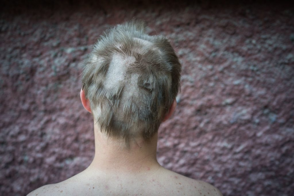 back of someone's head with a bad haircut